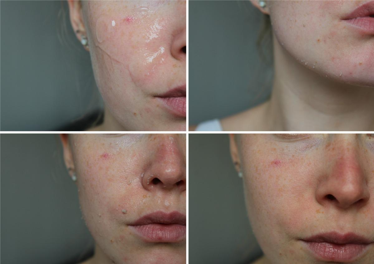 The incredible face gel van MayBeauty | Dode huid balletjes?